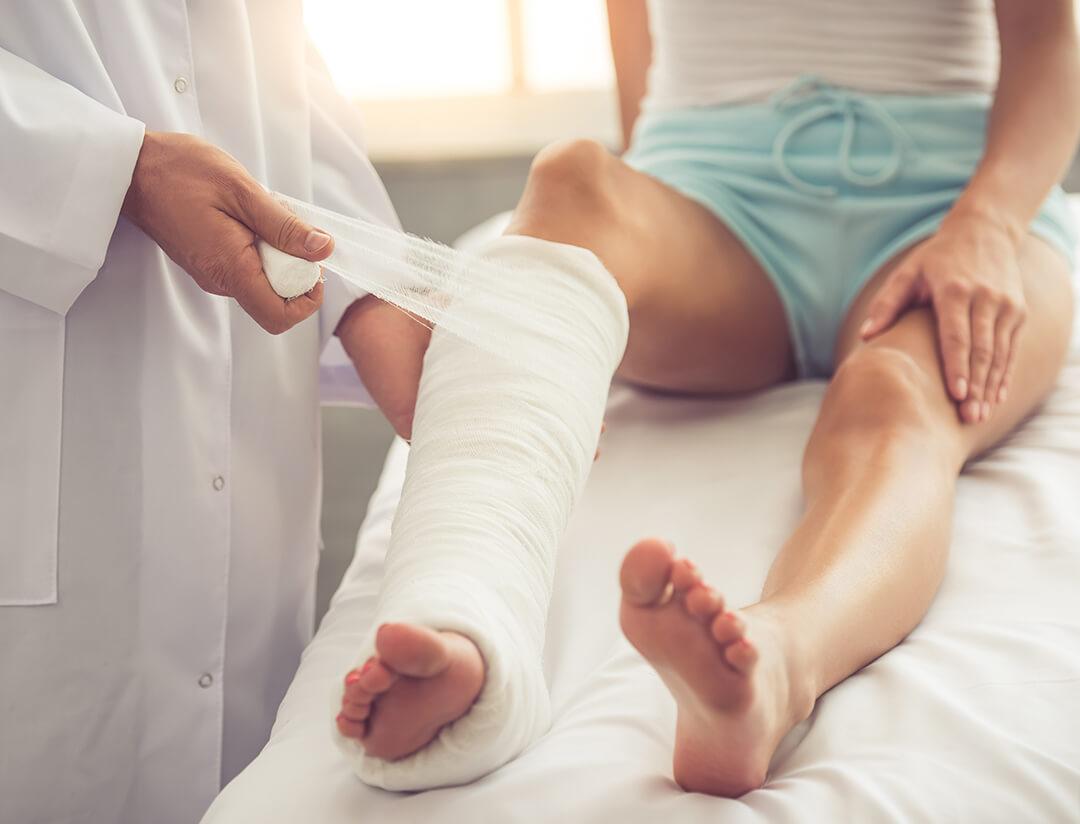 broken leg cast orthopedic